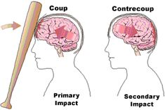 Contrecoup Injuries The injury that occurs at a site opposite the side of impact. In a contrecoup injury, the head stops abruptly and the brain collides with the inside of the skull.