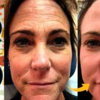 get rid of wrinkles on face in one week with this powerful natural remedy - Beauty Care Magazine Face Wrinkles, Prevent Wrinkles, Prévenir Les Rides, Botox Before And After, Eye Wrinkle, Wrinkle Remover, Beauty Care, 10 Years, Bees