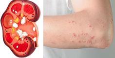 Als je een van deze verschijnselen vertoont dan lopen je nieren misschien ernstig gevaar!
