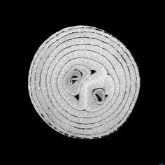 MRI image of an onion