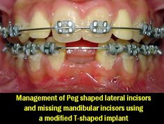 Management of Peg shaped lateral incisors and missing mandibular incisors using a modified T-shaped implant | OVI Dental