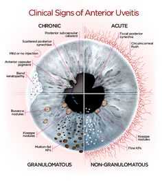 anterior_uveitis_diagram.png (500×558)
