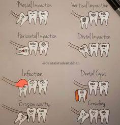 Dapper Dental Bridge Vs Implant - Another! Dental Assistant Study, Dental Hygiene Student, Dental Procedures, Dental Humor, Dental Hygienist, Dental Life, Dental Art, Dental Surgery, Dental Implants