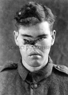 Facial wound on a World War I soldier