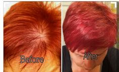 Hair thinning and weak?! Well..Yupp you guessed it..Plexus can Help with that too!!!  These results were achieved by adding the Plexus multivitamin XFACTOR!  Plexusslim.com/kellicinco