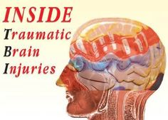 Traumatic Brain Injury: Lasting Effects | Nettles Law Firm