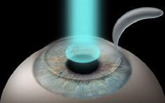 What is Lasik Eye Surgery - http://eyemagz.com/what-is-lasik-eye-surgery.html
