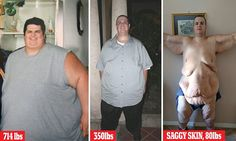 Extreme Weight Loss Skin 1000+ images about Wei...