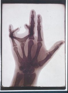 Albert Lande 1900 X ray of hand