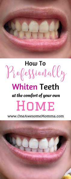 4 At Home Teeth Whiteners To Try Lifestyle Pinterest Hair