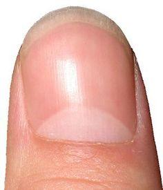 Healthy fingernail picture