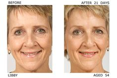 Amazing Results seen after 21 days, real #women with no #makeup before and after pictures. Will look amazing in 3 months ...Enter Door of Youth #skincare