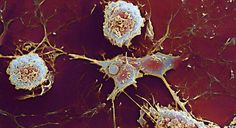 Multiple sclerosis discovery may explain gender gap  http://www.bbc.com/news/health-27323472