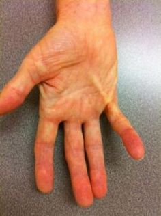 Dupuytren's Disease of Hand and Finger - Orthopedic Hand Specialist Western Mass - Hand Conditions - The Hand Center of Western Massachusetts Medical Conditions, Conditioner, Cord, Instagram Posts, Finger, Arms, Cable, Twine