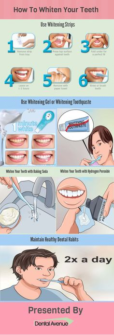 White teeth is an important component of a delightful smiling face. This infographic offers tips which will help in keeping your teeth white and healthy. #dental care #teeth whitening