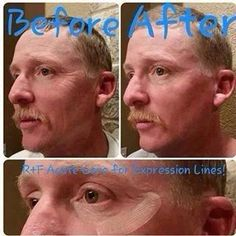 Even men can fill a wrinkle while they sleep with Acute Care, a patented technology exclusively available by Rodan + Fields! Message me on how you can get your hands on it too!! Rodan Fields Skin Care, Rodan And Fields Consultant, Acute Care, Skin Care Regimen, Redefine Regimen, Skin Firming, Sensitive Skin, Prevent Wrinkles, Acne Treatment