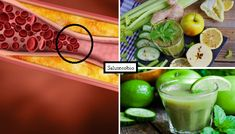 Mela, Zenzero, Cetrioli e....! Ecco 3 succhi naturali che abbassano i livelli di…