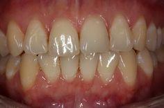 Да заздравим венците с тези ефективни методи и билки (част 2) Не пропускайте и почистването с конец за междузъбното пространство, както и специалните води за изплакване на устата след миене. Веднъж на...