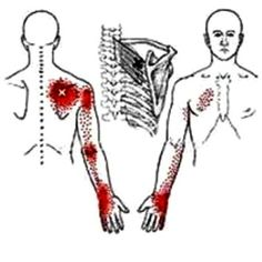 """What You Need To Know About """"Muscle Knots"""" or Trigger Points Massage Tips, Good Massage, Massage Therapy, Trigger Point Massage, Trigger Point Therapy, Neck And Shoulder Pain, Neck Pain, Knots In Neck Muscle, Sciatic Nerve Exercises"""