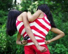 写真で解明「シャム双生児11年間の生活」_中国網_日本語