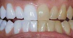 Unbelievable Tips: He mixed 2 ingredients and passed .- Dicas Inacreditáveis: Ele misturou 2 ingredientes e passou nos dentes. O… Unbelievable Tips: He mixed 2 ingredients and brushed his teeth. Coconut Oil For Teeth, Coconut Oil Pulling, Coconut Oil Uses, Teeth Whitening Remedies, Natural Teeth Whitening, Tumeric For Teeth Whitening, Whiten Teeth With Tumeric, Tumeric Toothpaste, Natural Toothpaste