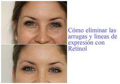 Retinol, lo mejor para eliminar las arrugas y lineas de expresión