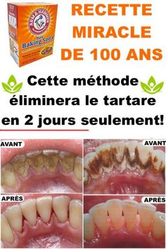 Cette méthode éliminera le tartare en 2 jours seulement! Health And Beauty Tips, Health Tips, Health Care, Atkins Diet, How To Stay Healthy, How To Lose Weight Fast, Natural Remedies, Beauty Hacks, Homemade