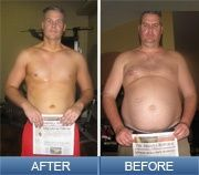 How long will it take to lose weight after lap band surgery