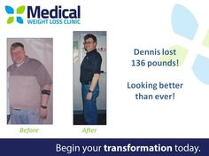 Nobody chooses to be a #diabetic, but that didn't stop Dennis from losing 132lbs! He also no longer suffers from Type 2 Diabetes*! But wait, Dennis lost another 30lbs on top of all of that!! Way to go!  #TransformationTuesday