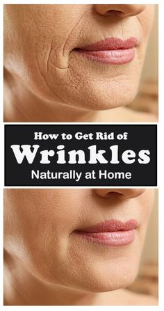 Face Wrinkles, Prevent Wrinkles, Home Remedies For Wrinkles, Wrinkle Remedies, Face Massage, Les Rides, Healthy Lifestyle Tips, How To Get Rid, Bermudas