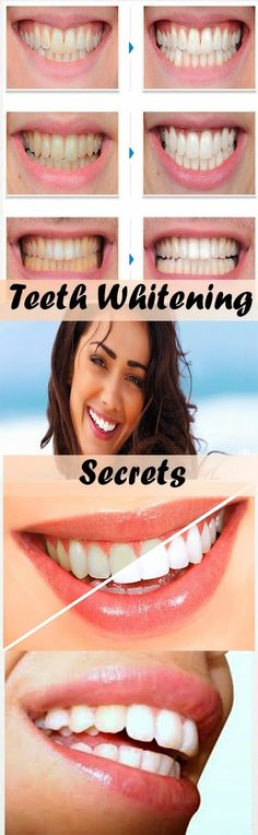 Natural Tooth Whitening Ideas  At Home Teeth Whitening vs. Dentist Supervised Teeth Whitening