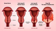 Things Should Know About Cervical Cancer!!   #DiscouragingMorose #Disease #UnfavorableNature #CervicalCancer #Cervix #Uterus #womb #OrdinaryCells #Pregnancy #Vagina #BirthChannel #CervicalTumor  #RegularCheckups #Symptoms #VaginalBleeding #Menopause #VaginalDischarge  #PelvisPain #Fatigue #LegsPain #Swelling #UrineLeakage #TheGenXTimes #GenXiMedia #Divazzo