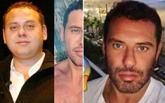 Estetikli erkek ünlülerden Mert Alaş, yuvarlak yüzünü keskinleştirip, saç ektirmiş. | Kadınca Fikir - Kadınca Fikir Game Of Thrones Sansa, Jawline