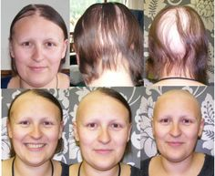Seven Things I Wish I'd Known When I Lost My Hair