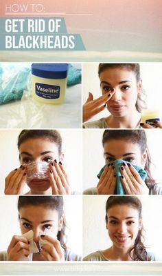 Remove Black Heads InstantlyYOU'LL NEED  - A piece of clear plastic (we used Gladwrap)  - 2 small washcloths  - Tissue  - Moisturiser/balm (we used Vaseline)DIRECTIONS  1. It's best to do this once you've jumped out of the shower while your skin's temperature is higher as pores will be open, making it easier for you to extract dirt and grime.  2. Apply a thick coat of moisturiser to the area that needs to be treated to create a temporary seal, trapping the heat in the skin. Vaseline works…