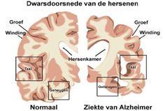 De bovenkamer van een normaal iemand en iemand met de ziekte van Alzheimer.
