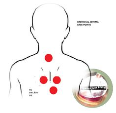 Bronchial Asthma Hijama cupping points