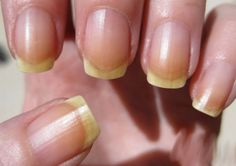 Fingernails are a barometer of your general state of health; yellow nails are associated with: smoking, regular use of nail polish, medications, slow nail growth & the yellow nail syndrome. Yellow Nail Syndrome, Ongles Forts, Le Psoriasis, Fungal Nail Treatment, Nail Mania, Nail Care Tips, Nail Tips, How To Lighten Hair, Skin Treatments