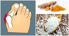 Bust bunion pain! 13 Pain Relieving Remedies For Bunions You Can Do At Home