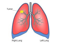 Yale Cancer Center Study Shows Long-Term Survival Benefits for Lung Cancer Patients. Tap to read. Natural Treatments, Natural Cures, Lung Cancer Treatment, Androgen Receptor, Survival, Prostate Cancer, Genetics, Lunges, How To Find Out