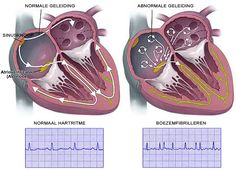 Hartritme stoornissen Beschrijving: Alle dingen die niet goed zijn in het ritme van je hart. vb. te snel of te langzaam kloppen van je hart, het overslaan van een hartslag, enz. Oorzaken: ouderdom, te snel werkende schildklier, doorgemaakt hartinfarct, hartspierziekte, hartfalen, operatie aan het hart, aangeboren hartafwijking, tabak, alcohol en drugs. Behandeling: Medicijnen om hartritme te controleren of verlagen, cardioversie, ablatie, pacemaker, ICD en/of operatie om de oorzaak weg te…