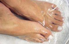 ¿Sandalias?  ¿Talones secos?  1/4 taza Listerine azul, 1/4 taza vinagre, 1/2 taza de agua sumergir pies por 10 minutos
