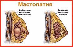 что принять при мастопатии(46) Одноклассники