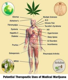 Graphic Shows Potential Medicinal Uses for Marijuana