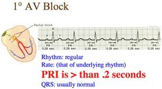 NOTE: In the interpretation always state the underlying rhythm. For example: Sinus Bradycardia with a degree AV Block Ekg Interpretation, Nursing Tips, Nursing Cv, Nurse Problems, Night Shift Nurse, Nursing School Notes, Nurse Jackie, Cardiac Nursing, Pa School