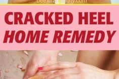 GRANDMA TOLD ME THIS TRICK. IT HEALED MY CRACKED HEELS IN JUST 1 NIGHT!!!