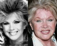 Connie Stevens Plastic Surgery Before and After Botox Injections and Lip Implants Botched Plastic Surgery, Bad Plastic Surgeries, Plastic Surgery Before After, Plastic Surgery Gone Wrong, Celebrity Plastic Surgery, Celebrities Before And After, Celebrities Then And Now, Lip Implants, Connie Stevens