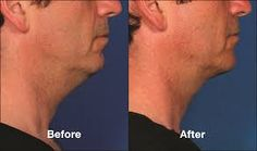 Having double Chin? Double chin removal with Kybella is a great non-surgical treatment. Call for a consultation with Chicago dentist Dr. Fractional Laser Treatment, Chin Liposuction, Double Chin Treatment, Double Chin Removal, Laser Clinics, Medical Spa, Korean Skincare, Plastic Surgery, Skin Care