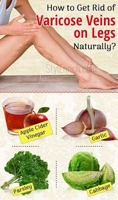 Varicose vein is a common condition in legs which is often painful. It is essential to know how to get rid of varicose veins as they are painful in nature. These veins appear bluish in colour and are …