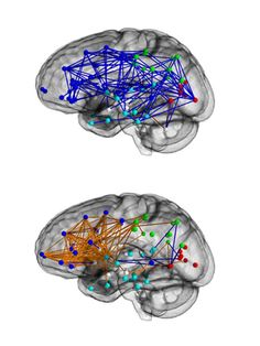 A pioneering study has shown for the first time that the brains of men and women are wired up differently which could explain some of the stereotypical differences in male and female behaviour, scientists have said.